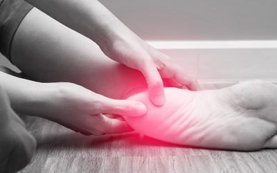 Plantar Fasciitis: Everything You Need to Know
